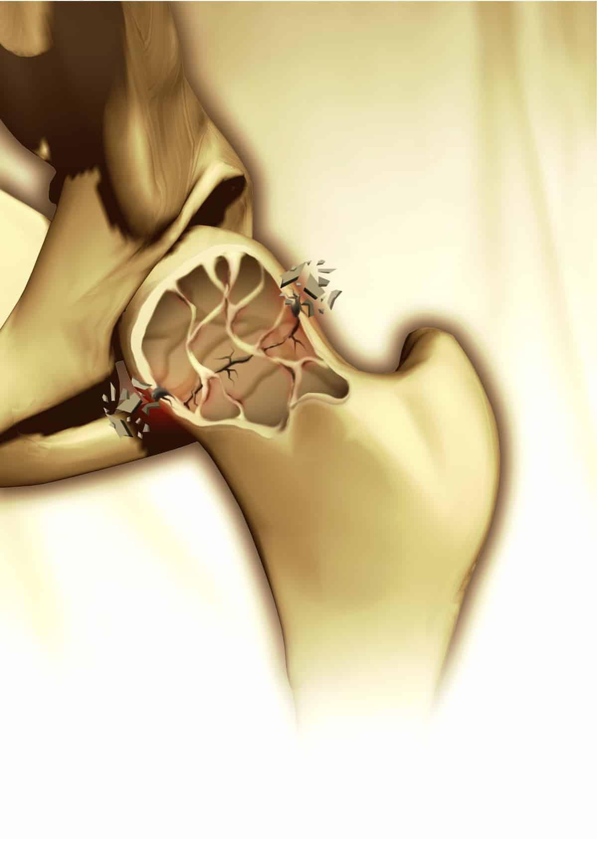 cópia de Osteoporose